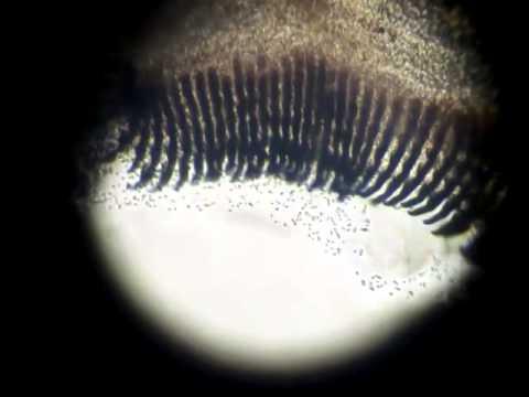 Batrachochytrium dendrobatidis - swimming zoospores
