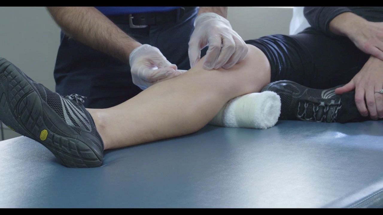Dry Needling vs Acupuncture - YouTube