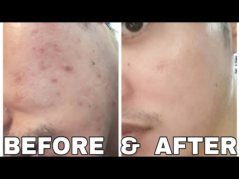 ACNE MARKS: Affordable and Super Effective na Solusyon (Tagalog)