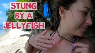 Stung By A Jellyfish - Cabagnow Cave Pool Bohol Philippines