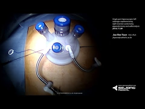 Single port laparoscopic LSO, appendectomy Using Lapsingle