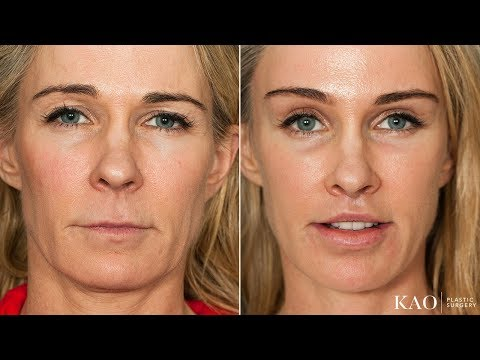 WOW! PONYTAIL LIFT™ with Upper Lip Lift - Incredible results on an athletic patient.