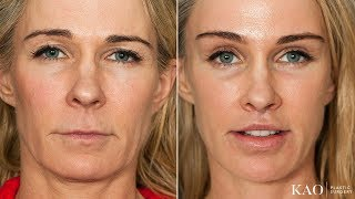 WOW! PONYTAIL LIFT™ Facelift - Upper Lip Lift - Plastic Surgery - See What Happens! Amazing Results!