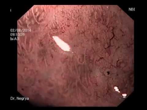 Early gastric cancer (SRCC). Ранний рак желудка - YouTube