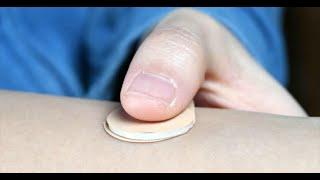 Fini la pilule ! Les scientifiques ont créé un nouveau patch contraceptif pour prévenir la grossesse