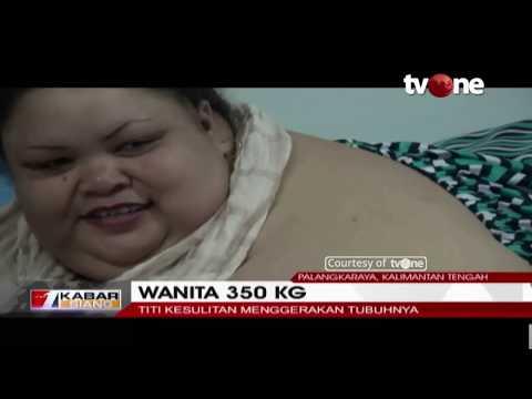 Wanita Obesitas 350 KG, Titi Wati, Berharap Bobotnya Kembali Normal