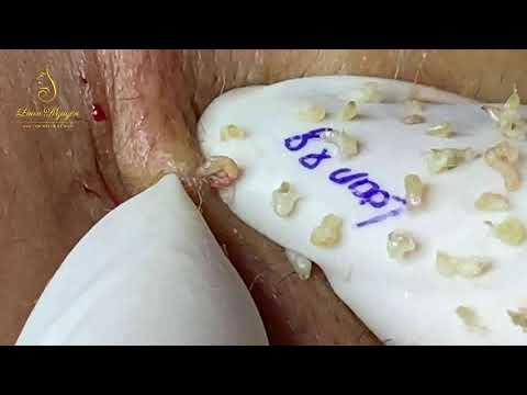 REMOVAL BLACKHEADS FOR MEN (88) Loan Nguyen