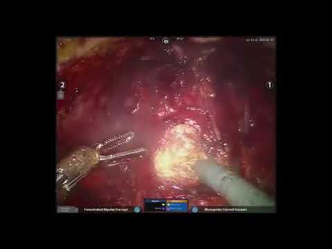 Non Nerve Sparing Robotic Prostatectomy Posterior Approach By Dr K