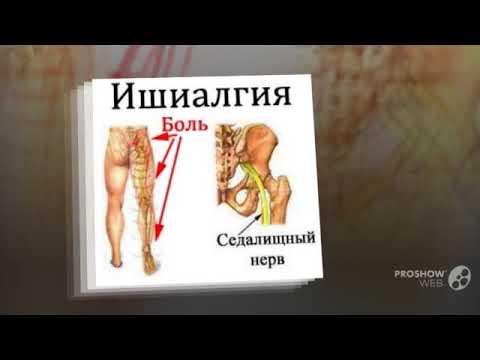 Болит поясница отдает в ягодицу и в ногу