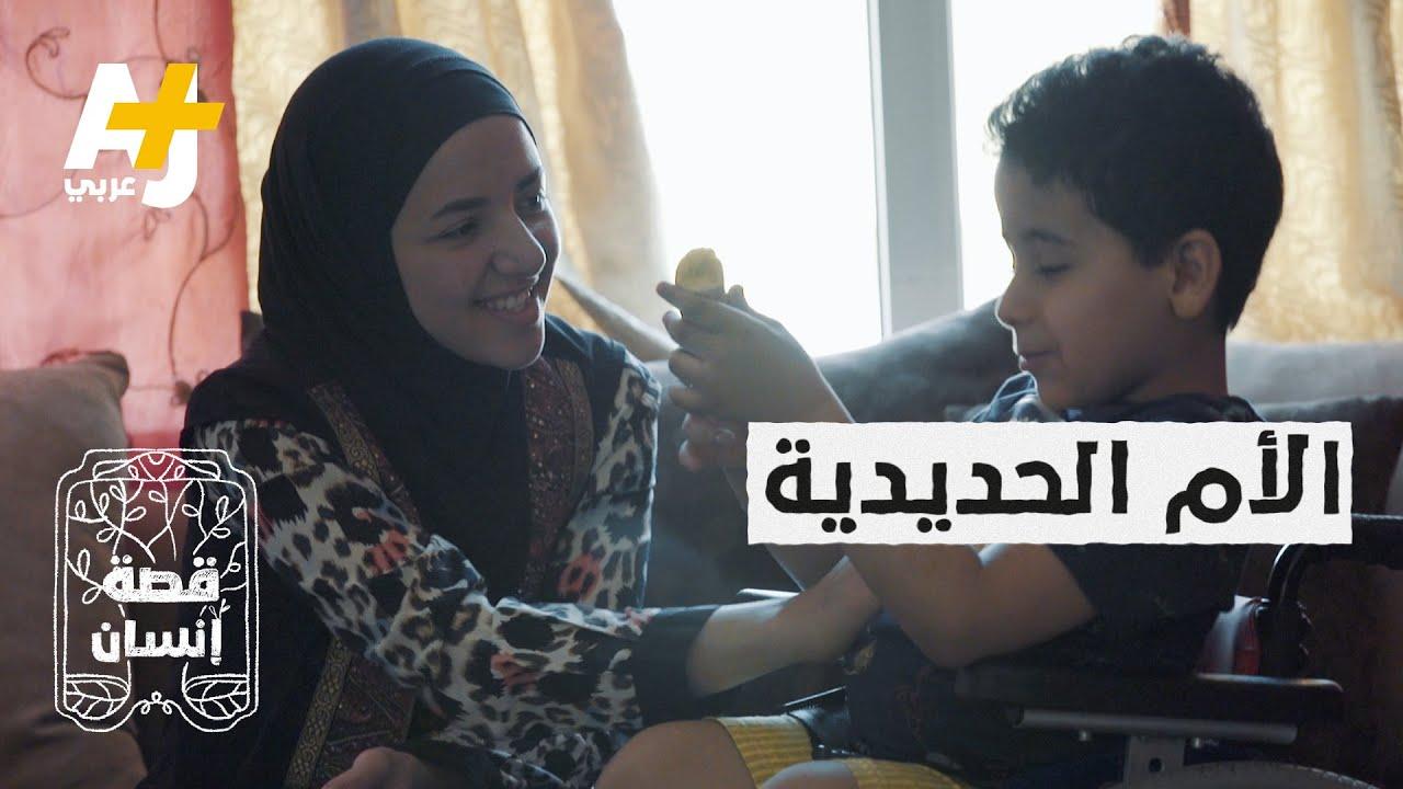 طفل مصري ولد بشق في العمود الفقري فساعدته أمه بهذه الطريقة