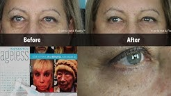 Instantly Ageless COMPLETE Review + Demo!