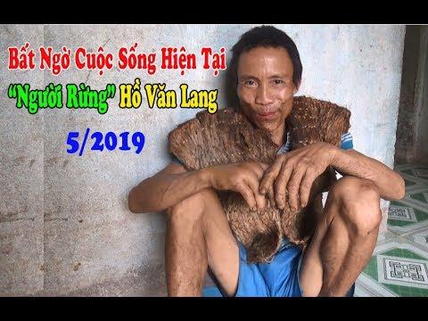 """Bất Ngờ Cuộc Sống """"Người Rừng"""" Hồ Văn Lang Sau Hơn 5 Năm Trở Về Buôn Làng - Vietnamese Tarzan"""
