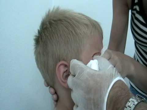 kola loka para suturar heridas