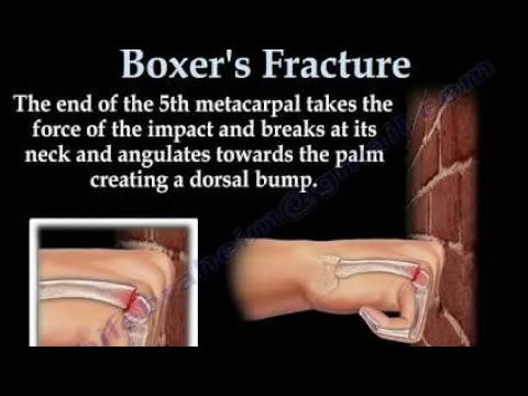Boxers fracture home treatment