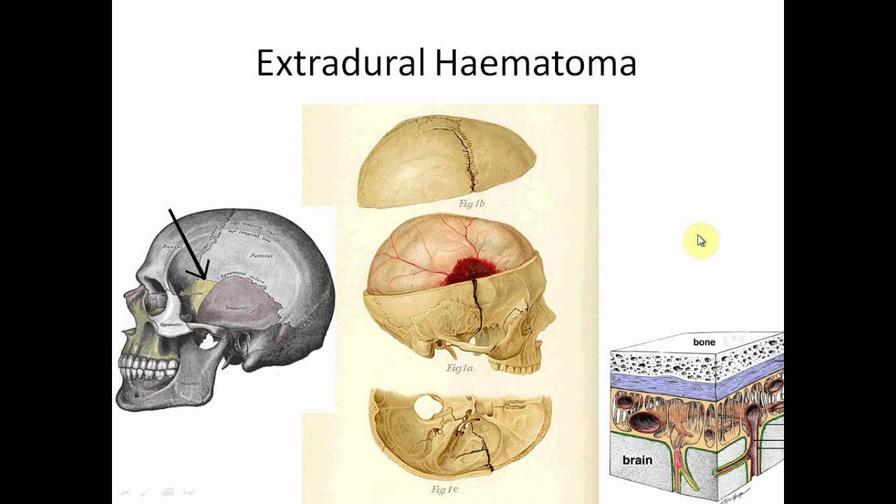 Intracranial Haemorrhages For Medical Students Part 1 Of 8 Youtube