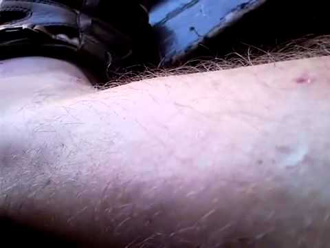Timothytrespas:MORGELLONS Genetically Modified Insects GOVERNMENT Bio Nano-technology!