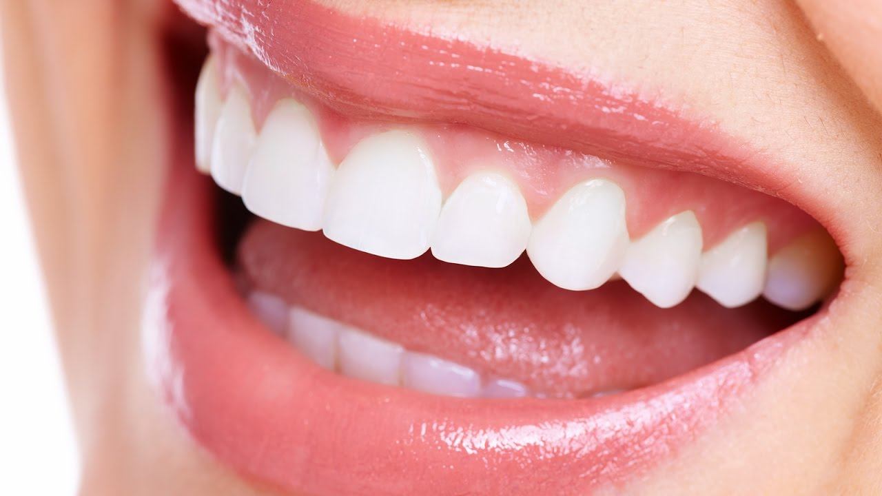 How to align teeth without braces, is it possible 33