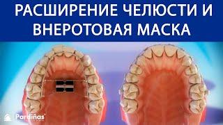 Типы ортодонтия — Расширение челюсти и внеротовая маска ©