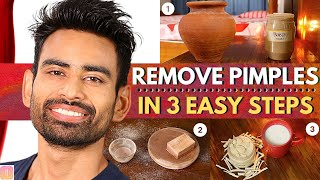 ULTIMATE Ayurvedic Routine to Get Rid of Pimples & Acne Permanently (Men & Women)