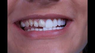 Вставные зубы виниры.