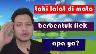 CARA ILANGIN TAHI LALAT! + TIPS (My Tahi Lalat Story).