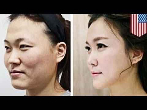 الجراحة التجميلية في كوريا الجنوبية متقنة إلى حد أنك لن