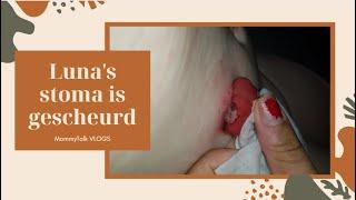 VLOG 58   Luna's stoma is gescheurd...   MommyTalk VLOGS