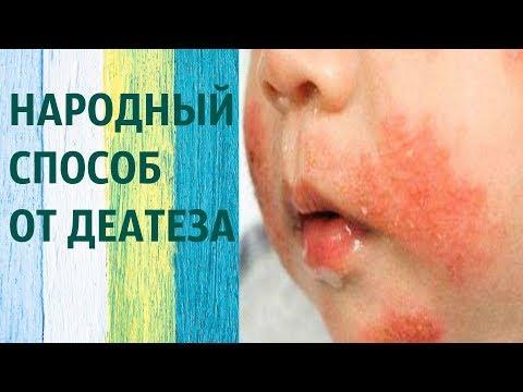 Чем лечить диатез на щеках у грудного ребенка в домашних условиях быстро