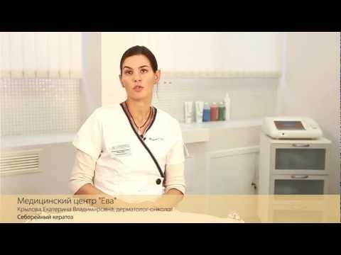 Что такое себорейная кератома (старческая кератома)