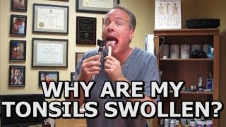 Natural Solutions For Swollen Tonsils. How To Avoid A Tonsillectomy (Common Sense Medicine)