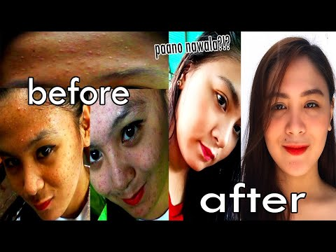 paano-nawala-pimples-ko?-|-skin-care-routine-(affordable-products)-+-my-acne-story|-gelai-santos