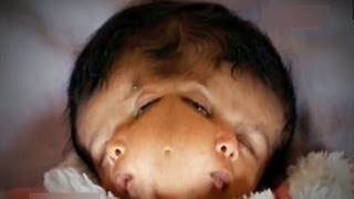 Скачать Miracle Baby With 2 Faces Hope And Faith