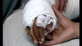 Основы лечения пациентов с боевыми ранениями. Фильм МКК.