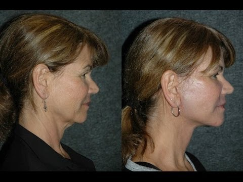 Facelift Surgery Before And After Amp Fractional Co2 Laser