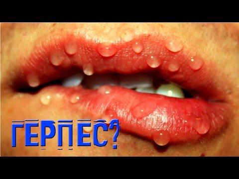 Заеды на губах – причины и симптомы, как лечить?