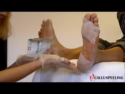 MAVEX: CALLUSPEELING, THE ORIGINAL SWISS FOOT TREATMENT