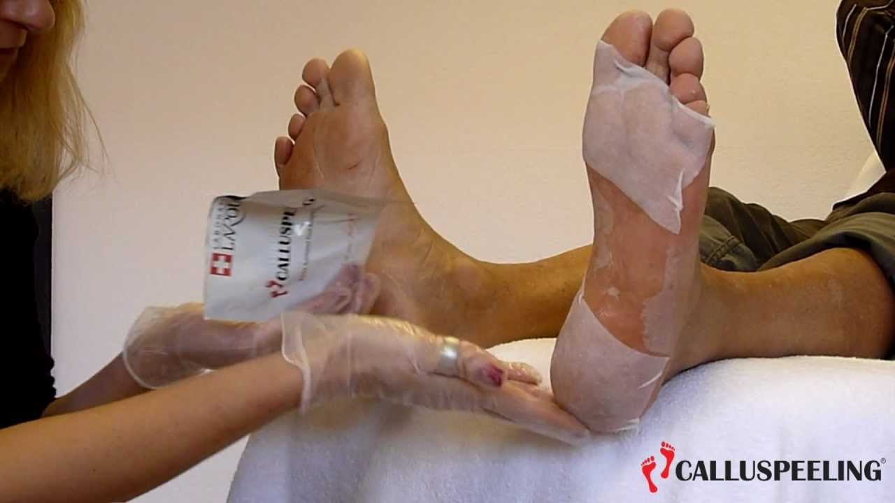 MAVEX: CALLUSPEELING, THE ORIGINAL SWISS FOOT TREATMENT