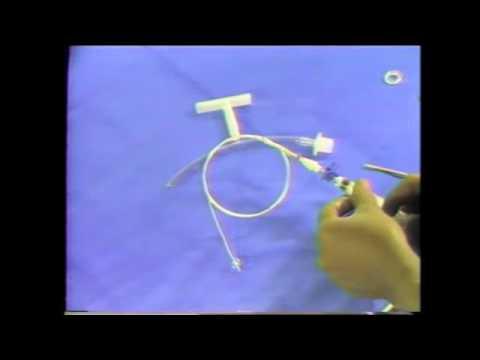 01 Safe T Tube System