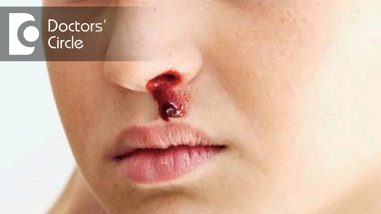 Management of nose bleeding in children - Dr. Lakshmi ...