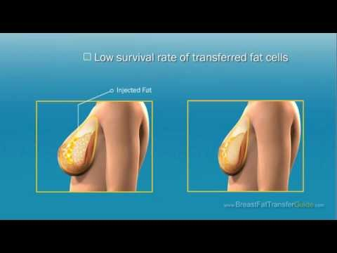 fat Breast augmentation transfer through