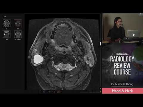 Bilateral Parotid Diseases - Radiology Review Course (MRI, CT, Ultrasound)