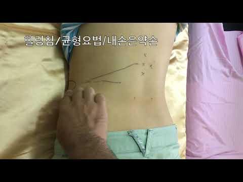 대상포진 치료방법 이호택 셀프테라피 혈자리 Acupuncture Points 힐링침/ 균형요법 / 내손은약손