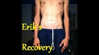 Anorexia Recovery  The Beginning  ErikTheElectric