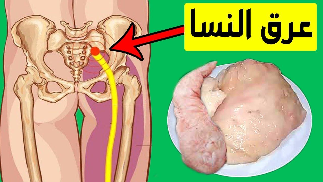 علاج عرق النسا أو إلتهاب العصب الوركي كما اخبرنا به النبي ﷺ قبل 1000 عام