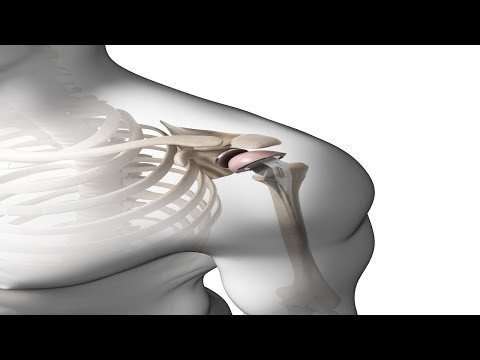 What Is A Shoulder Replacement? | Dr. Walter Stanwood