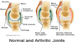Preventing Arthritis At The Initial Stage | Arthritis Prevention
