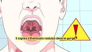 5 signes d'éventuels nodules dans la gorge