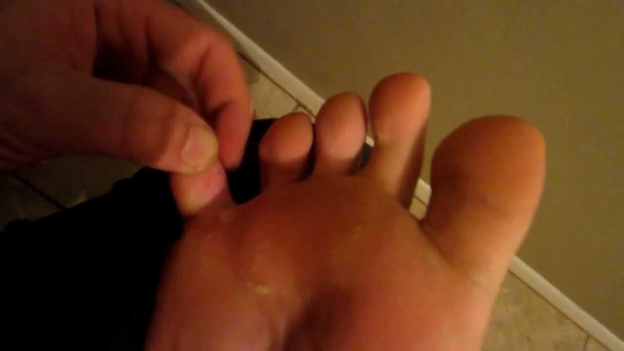 Athlete's Foot Info   Boot Bomb