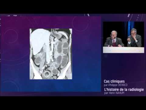 Histoire de la Radiologie  Conférence Antoine Béclècre  JFR 2015