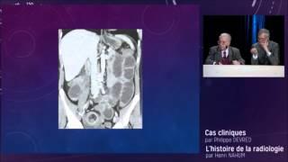 Histoire de la Radiologie - Conférence Antoine Béclècre - JFR 2015